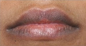 How to get rid of dark lips naturally